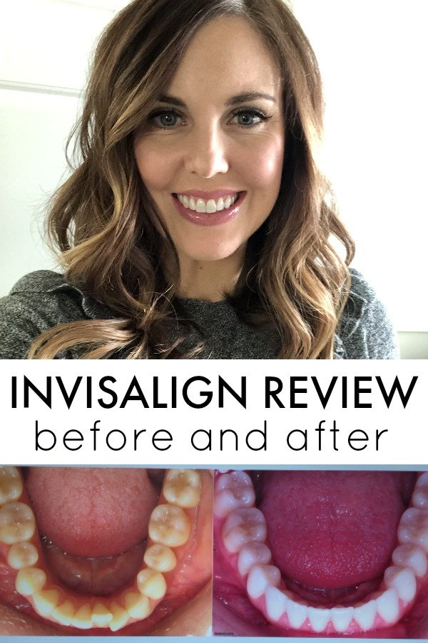 Before And After Invisalign Reveal Review With Defay Orthodontics